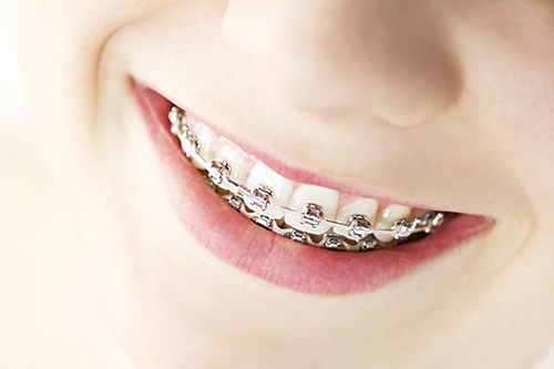dental braces in Morris Plains