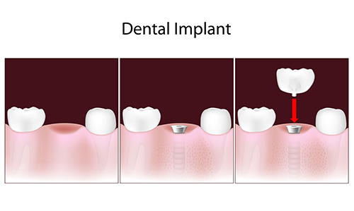 dental implants in Morris Plains